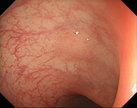 Діагностика слизьової оболонки