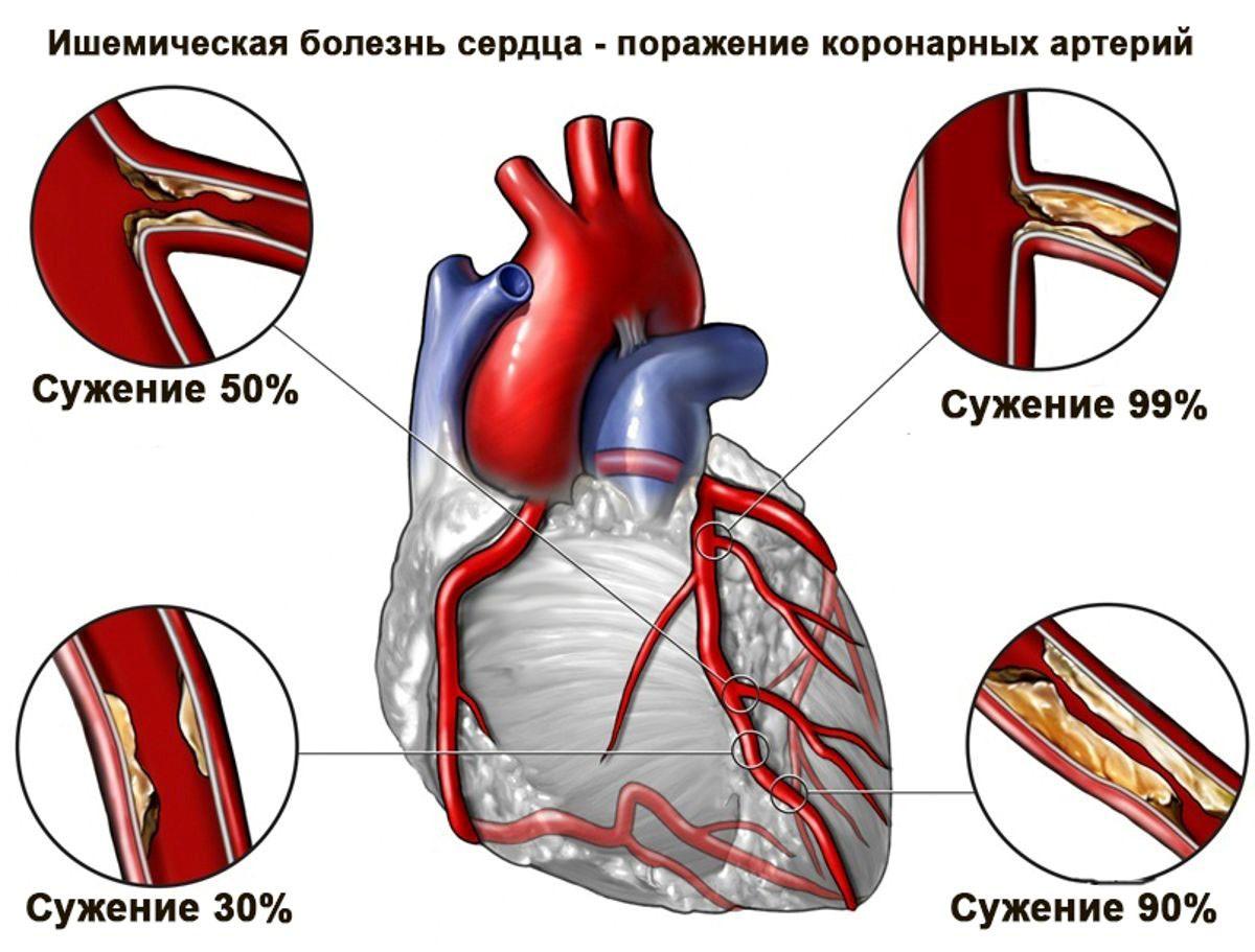 Состояние коронарных артерий при ИБС