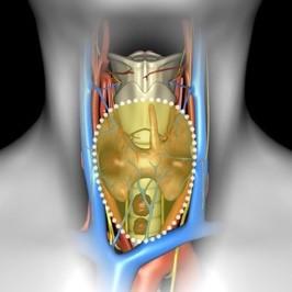 рак щитовидної залози з ураженням лімфатичних вузлів шиї 5