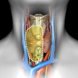 рак щитовидної залози з ураженням лімфатичних вузлів шиї 2