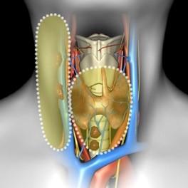 Тиреоидэктомия, передняя и селективная латеральная шейная диссекция - 2