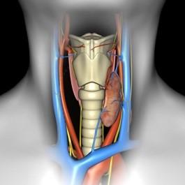 Односторонній вузловий (багатовузловий і / або шийно-загрудинний) зоб III-IV ступеня