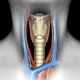 Тиреоидэктомия, передняя и селективная латеральная шейная диссекция - 3