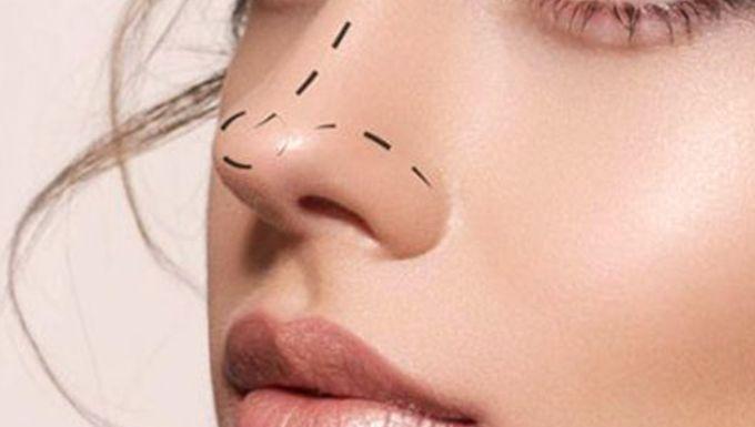 Ринопластика носа в Рішон